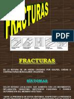 Fracturas Dia Dos