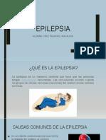 Epilepsia y Sincope
