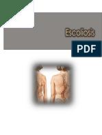 e Scoliosis