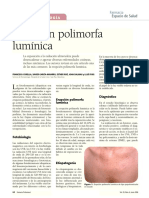 Derm. Polimorfa Solar