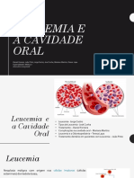 337307897 Leucemia e a Cavidade Oral
