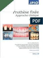 JPIO_Prothese_fixee