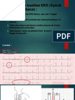 BASIC ECG_2
