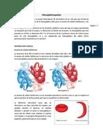 Hemoglobinopatías sinergias