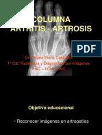 Artrosis Artritis Columna