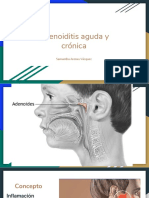 Adenoiditis-aguda-y-crónica.pptx