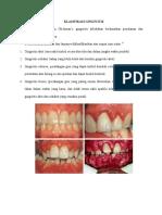 klasifikasi gingivitis.docx