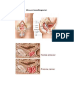 Adenocarcinomul-de-prostata.pdf