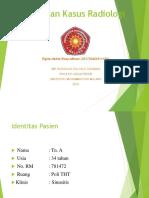 Lapsus Radiologi Elgita.pptx