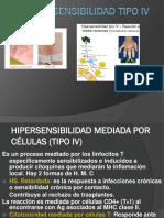 Hipersensibilidad (Tipo IV)