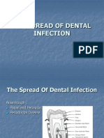 THE SPREAD OF DENTAL INFECTION (1).ppt