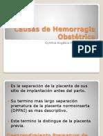 Causas de Hemorragia Obstetrica