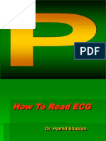 How to Read ECG