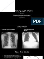 patologias torax RX
