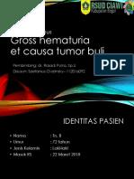 Case Tumor Buli - Sky - Dr Rosadi (1)