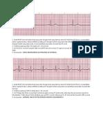 SOAL EKG 3