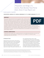 Minimally Invasive Preparation and Design of a Cantilevered, All-Ceramic, Resin-Bonded, Fixed Partial Denture in the Esthetic Zone