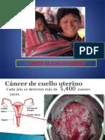 09.15 Upao Cervix