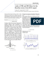 compare study of FIR and IIR filter  for the removal ò base line noises from ECG signal.pdf
