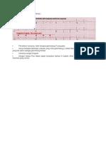 Contoh Gambar EKG Atrial Fibrilasi