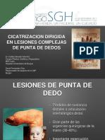 CICATRIZACION DIRIGIDA PULPEJOS