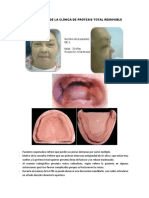 Caso Clinico de La Clínica de Prótesis Total Removible