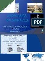 Neoplasis pulm RCR