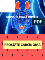 Urinary Tract Tumour