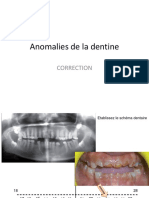 Anomalies de La Dentine