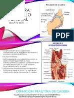 Fractura de Cadera Cuello de Femur1