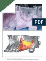 3. Cirugia Guiada -Esteriolitografia 2008.