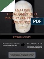 Analisis Cefalometrico Postero-Anterior (Ricketts) 2