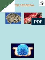 Manejo quirúrgico de los gliomas de alto grado.ppt 10Fono