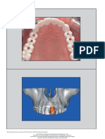 9. Prosthetically Directed Implant Parte I.pdf