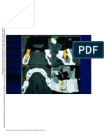 17. Navegacion Tridimensional en Implantologia