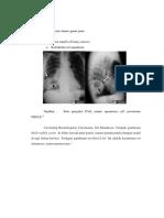 Gambaran foto thorax tumor ganas paru.docx