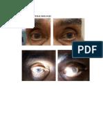Status Ophthalmologis Kakay