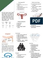 Leaflet IUD Dan Implan