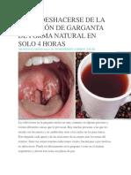 Cómo Deshacerse de La Infección de Garganta de Forma Natural en Solo 4 Horas