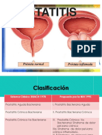 Prostatitis svs