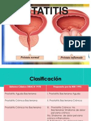 pronóstico de prostatitis crónica