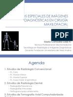 Estudios Especiales de Imágenes Diagnósticas en Cirugía Maxilofacial