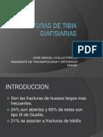 Fracturas de Tibia Diafisiarias
