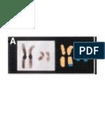 Gambar Balance Translocations Chromosomes