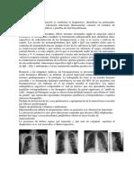 Diagnóstico bronquiectasia