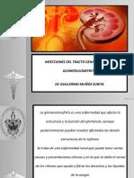 3) Glomerulonefritis