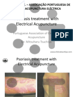 Psoriasis Treatment with Electrical Acupuncture