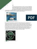 Caso Clinico Ezquizencefalia