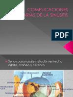 Complicaciones Orbitarias de La Sinusitis