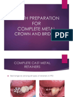 Tooth Preparation for Complete Metal Crowns and Bridges